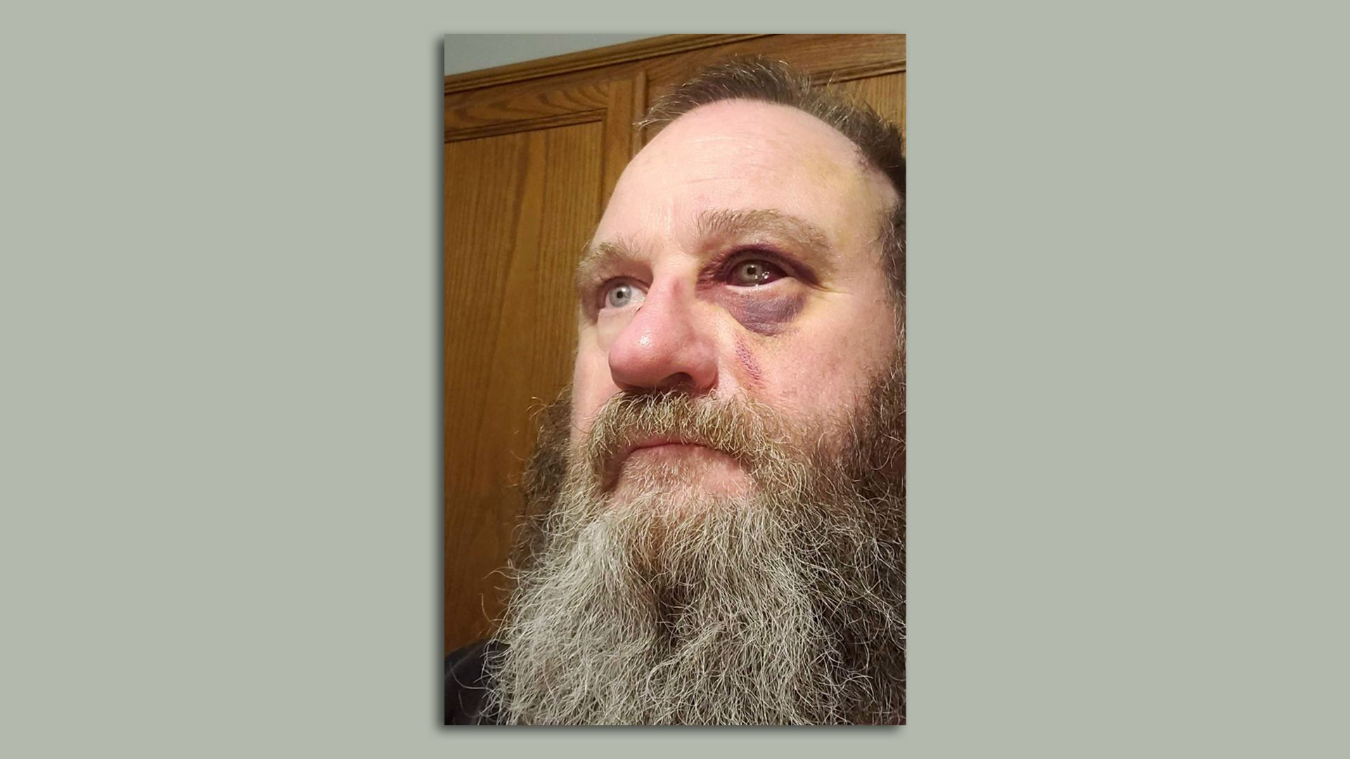 Mark Dinning was injured in a fight over a COVID-19 face mask. Dinning's attacker faces a mandatory 10 year prison sentence next month. Photo: Polk County District Court
