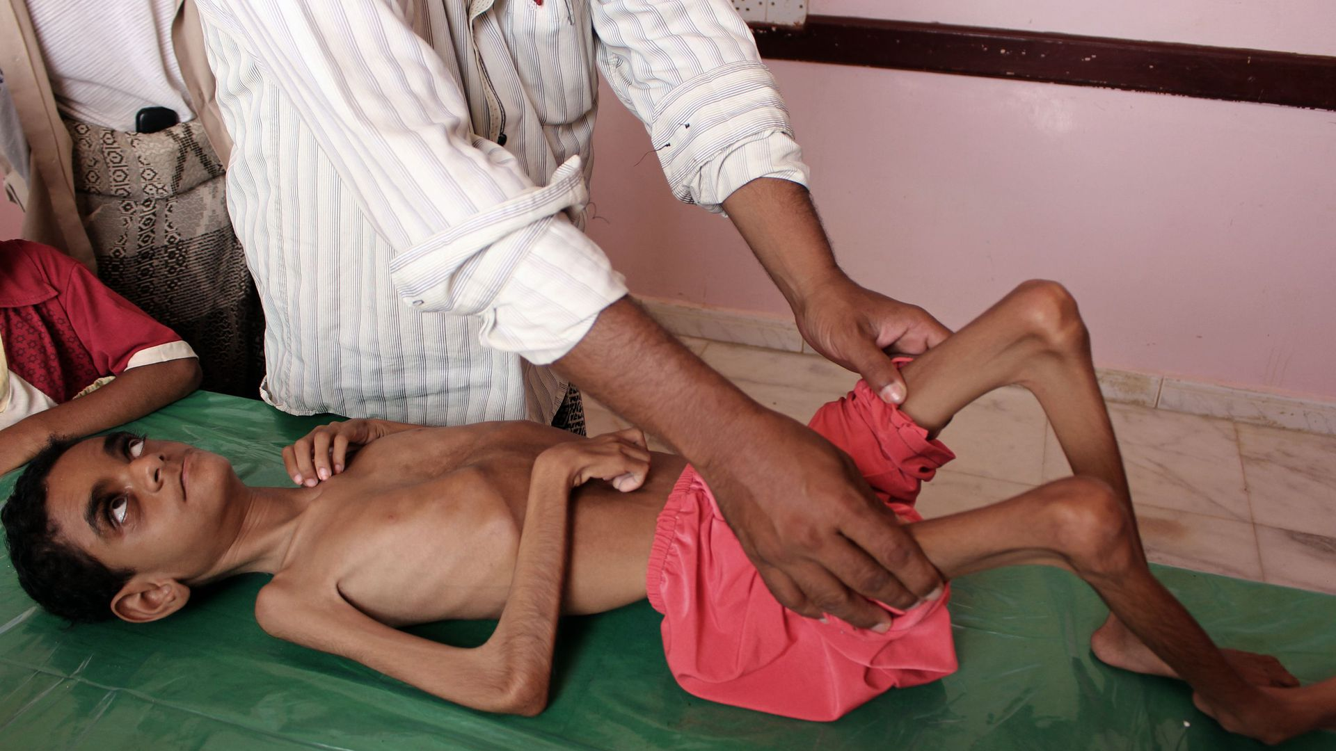 Yemeni child suffering from malnutrition