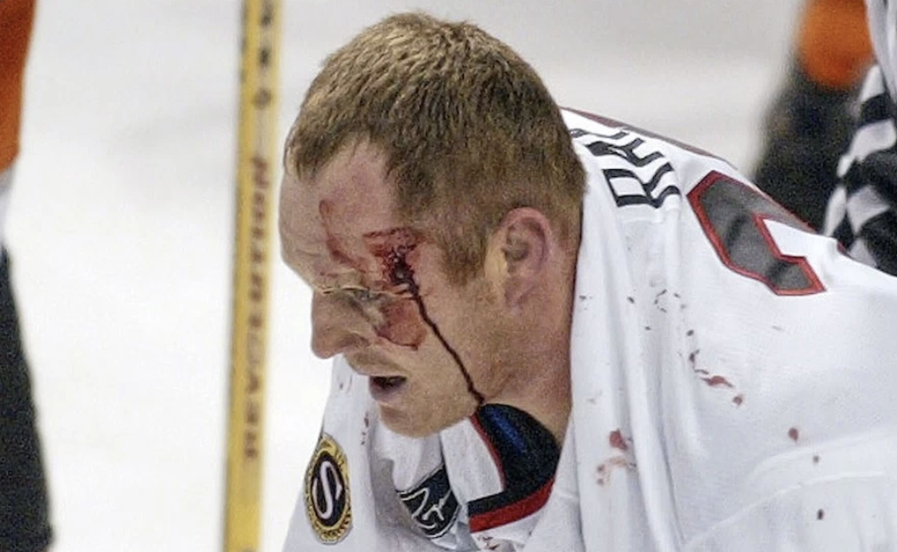 A bloodied Rob Ray skates off the ice