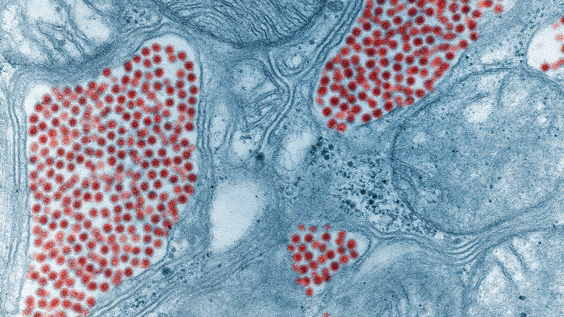 Colorized electron microscope image of mosquito salivary gland tissue infected by the EEE virus