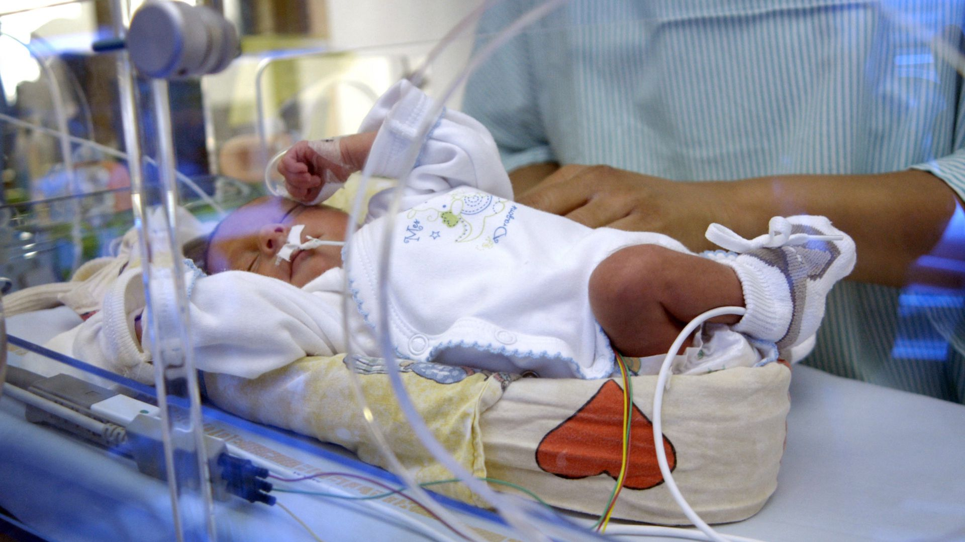 Baby in a neonatal care unit in France.