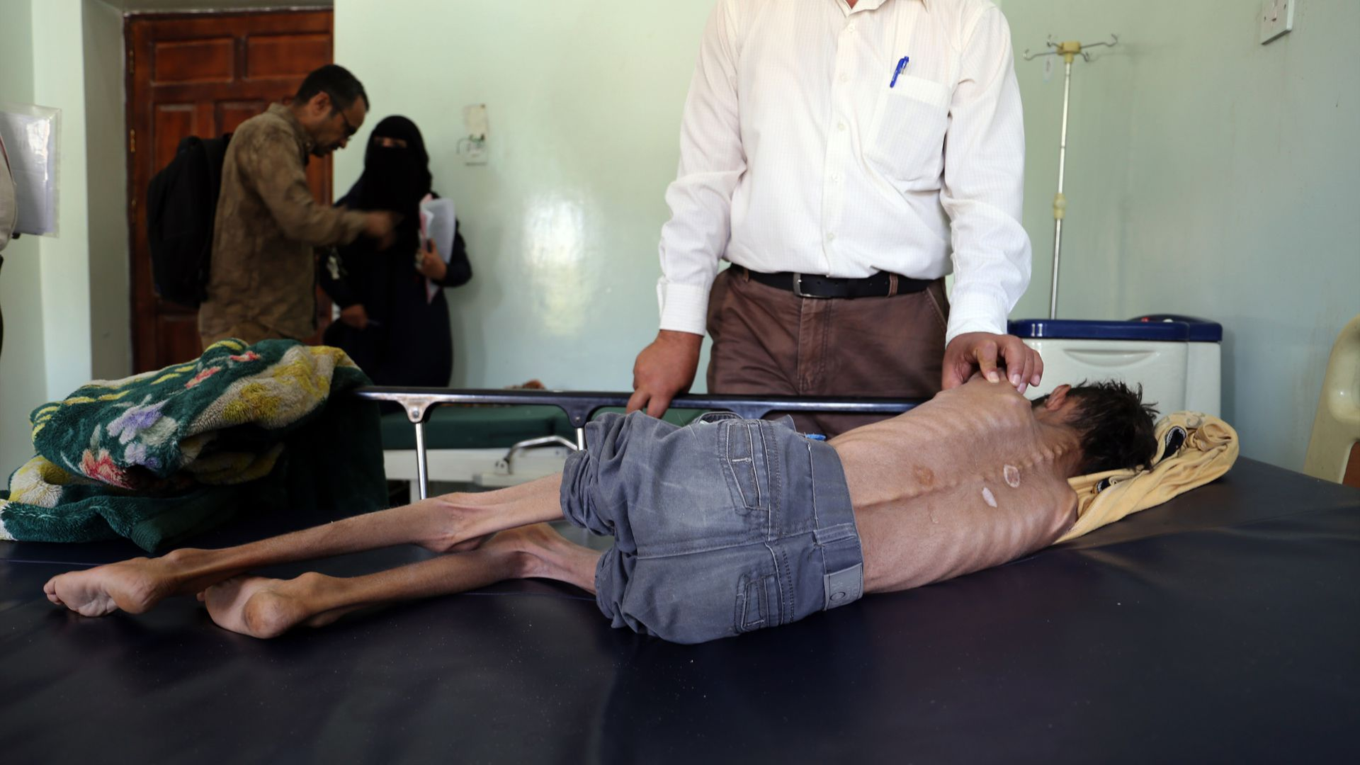 A severely malnourished boy lays in a hospital.