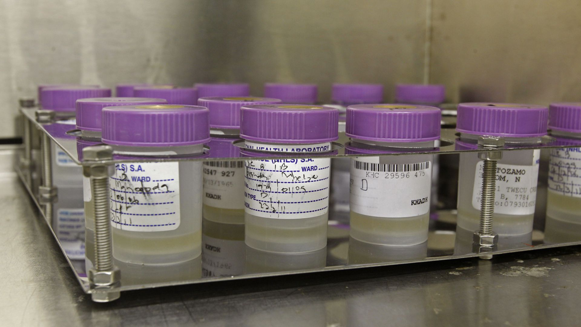 Tuberculosis samples at a South African clinic
