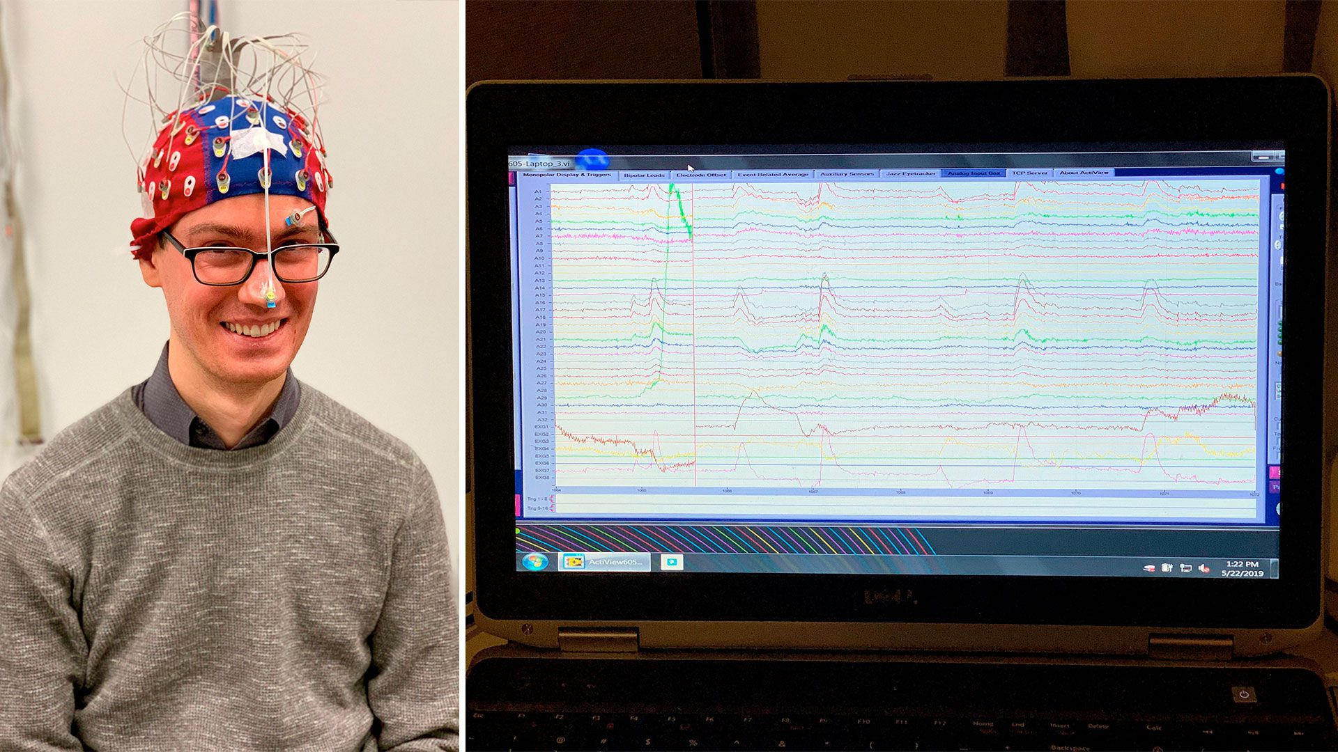 Photo of a man wearing a cap with wires next to a photo of a brain scan on a computer screen
