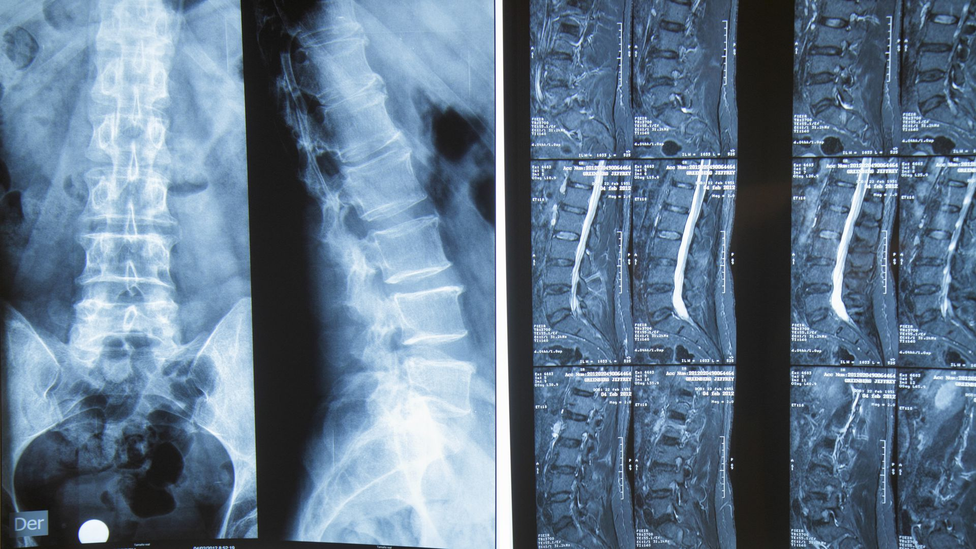 Spine x-rays at a hospital.