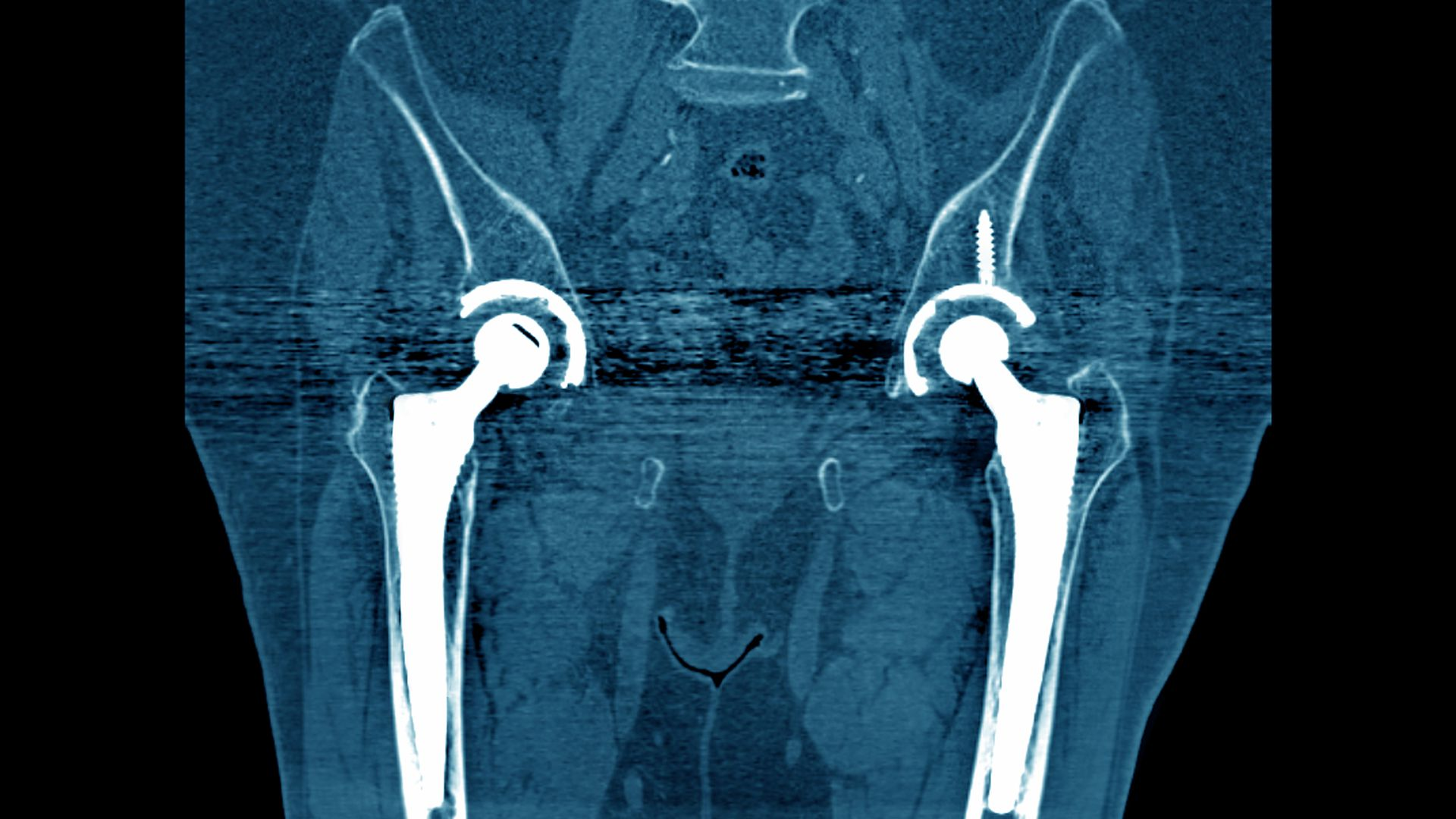 A CT image of hip implants.