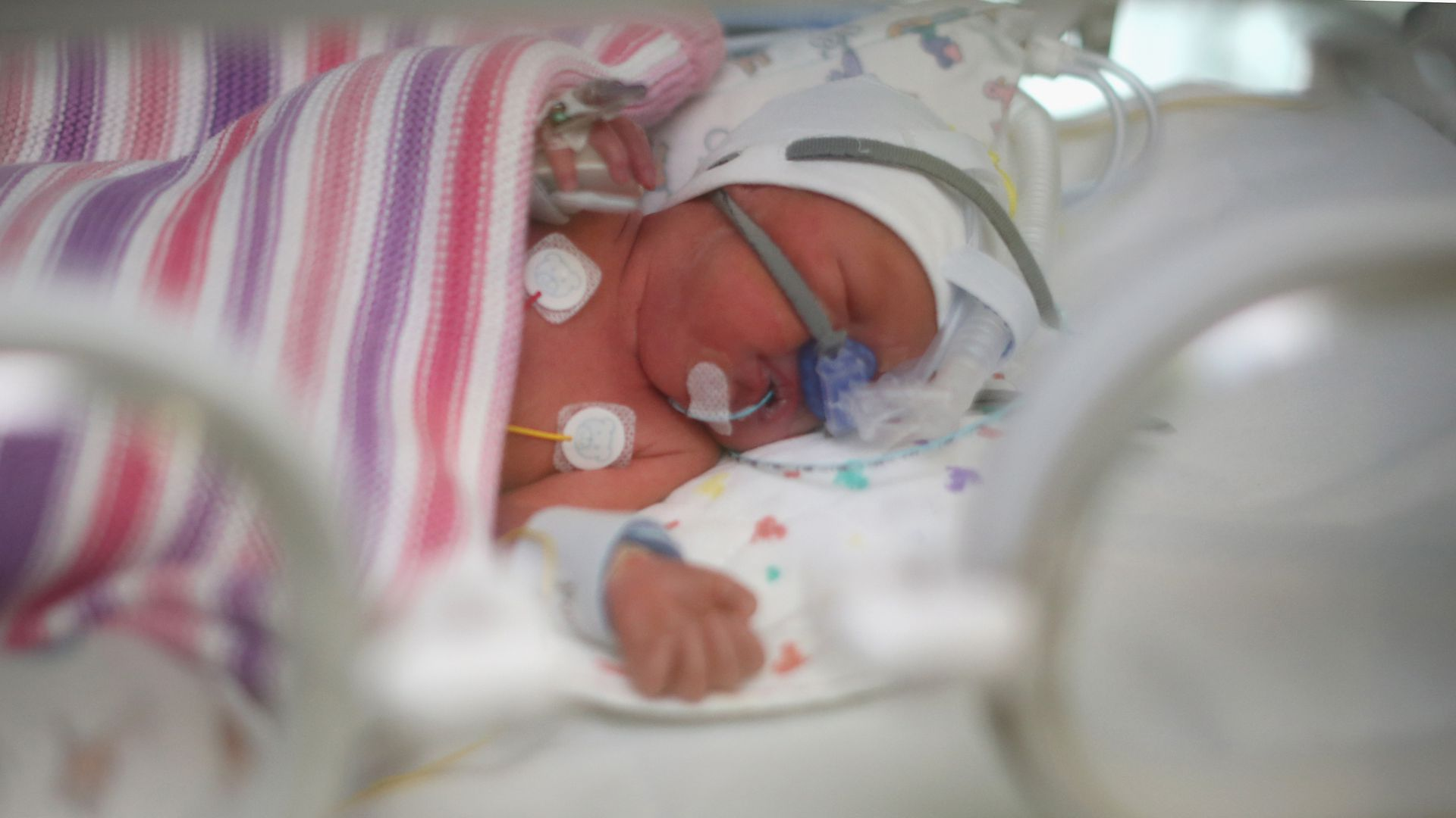 A baby in a hospital in Birmingham, England.