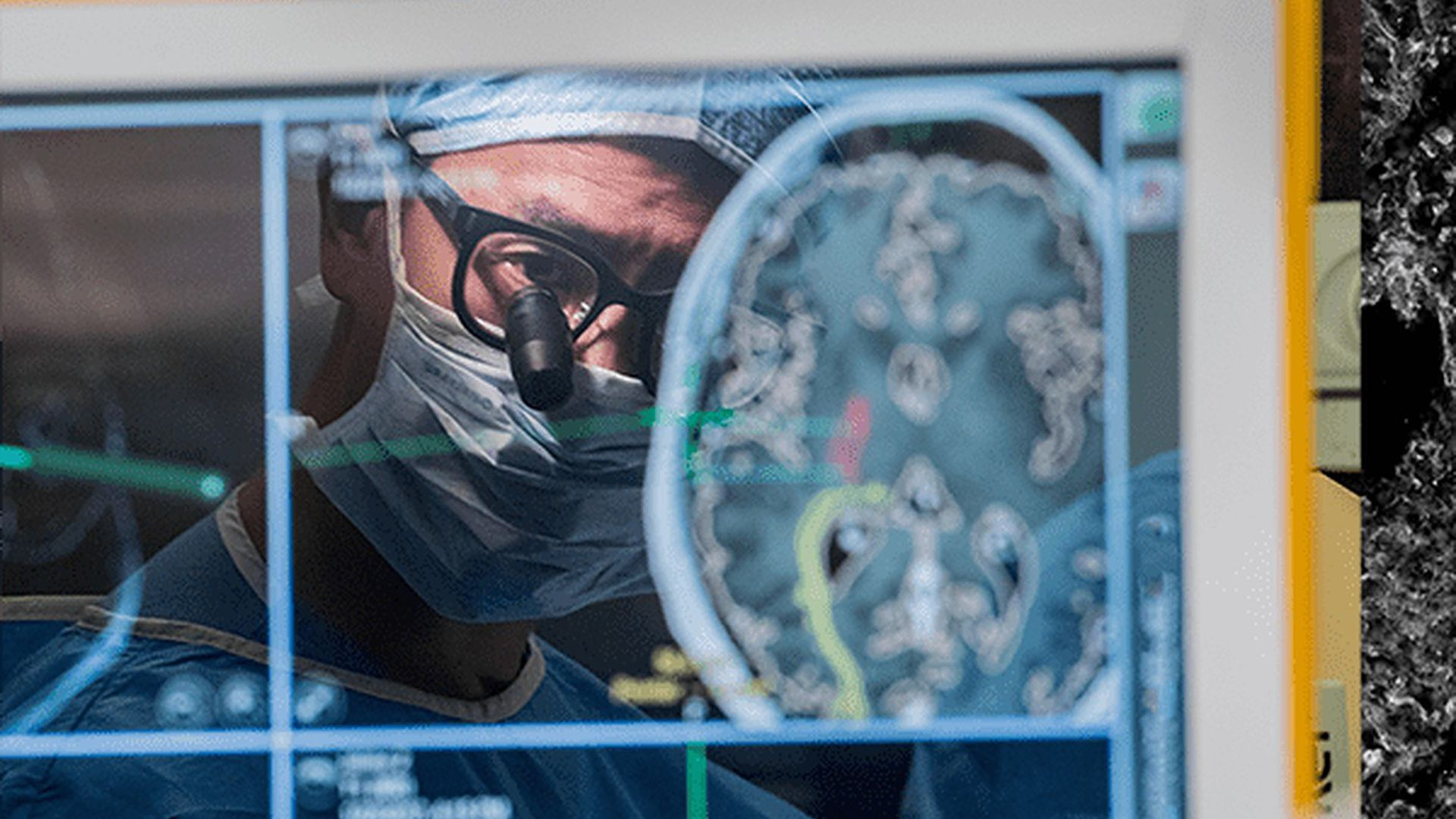 Neurosurgeon Eddie Chang performing brain surgery.
