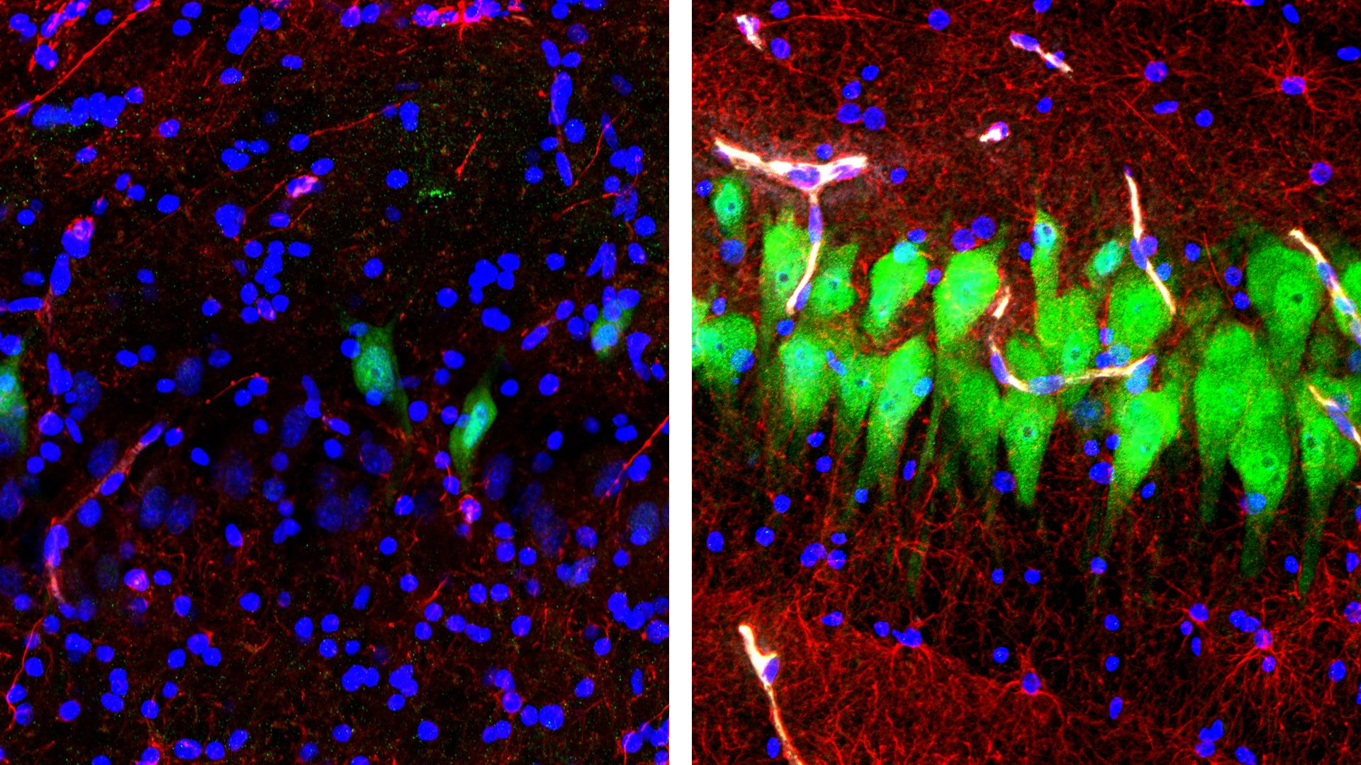 Photo of pig brain neuronal activity before and after BrainEx tool is used