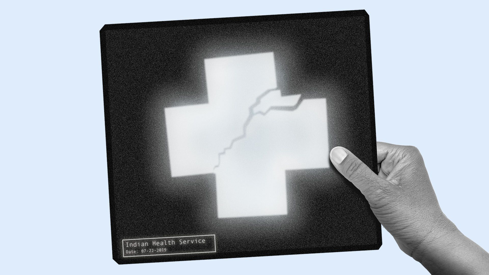 """Illustration of an x-ray with a broken red cross that reads """"Indian Health Service"""""""
