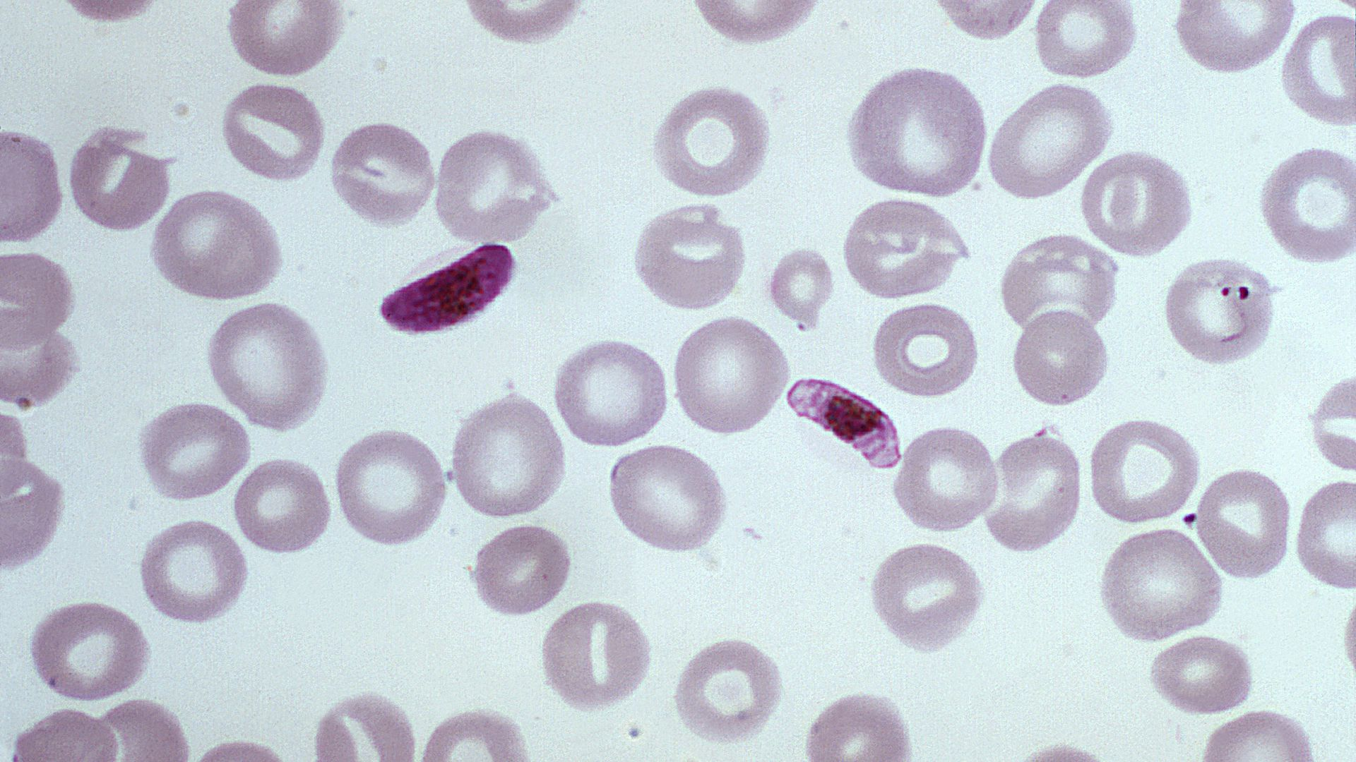 The Plasmodium falciparum parasite that causes malaria.