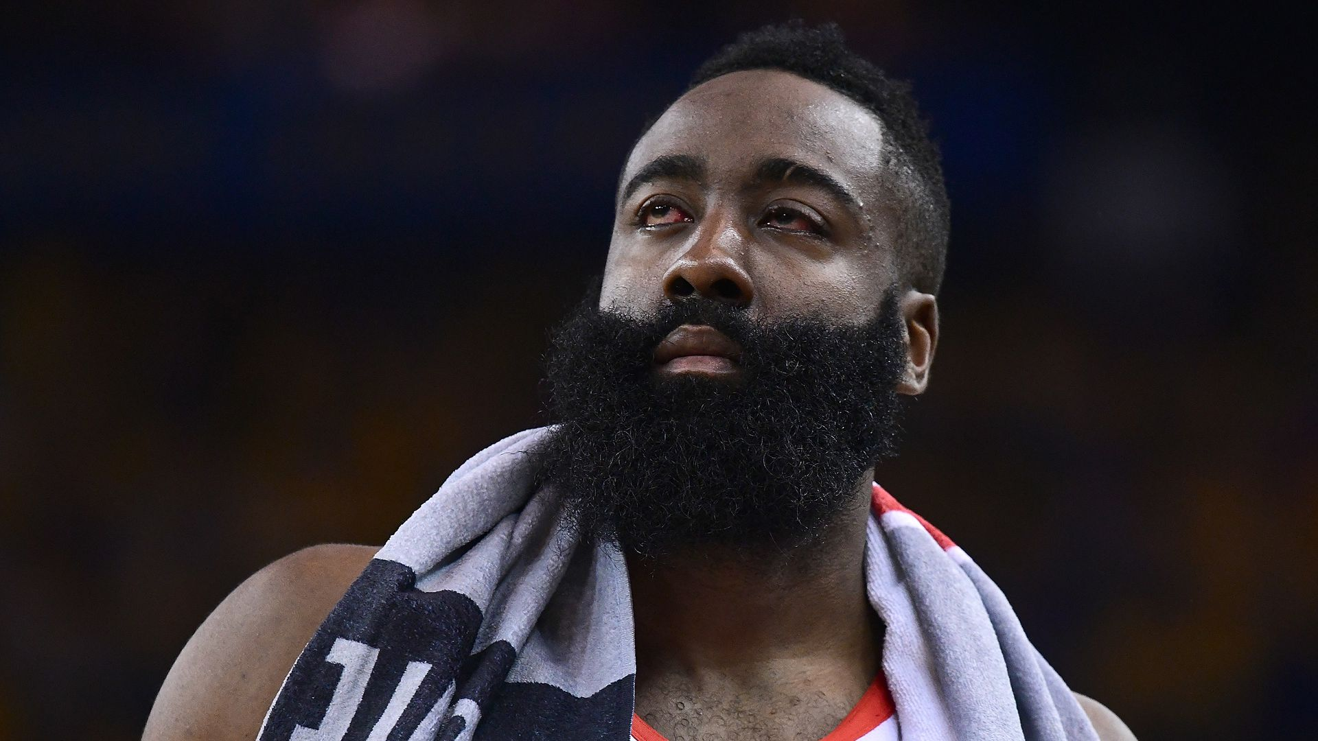 James Harden with a bloody eye