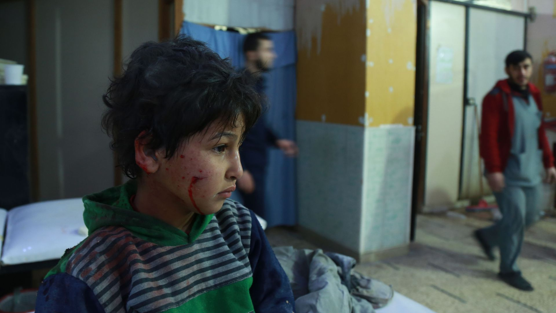 A wounded Syrian child waits for help at a makeshift hospital in the rebel-held town of Douma, in the besieged Eastern Ghouta region.
