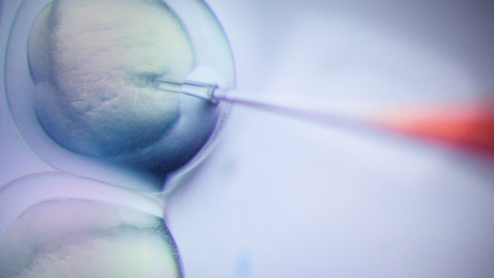 Photo of needle entering a cell as a researcher performs a CRISPR/Cas9 process at the Max-Delbrueck-Centre for Molecular Medicine.