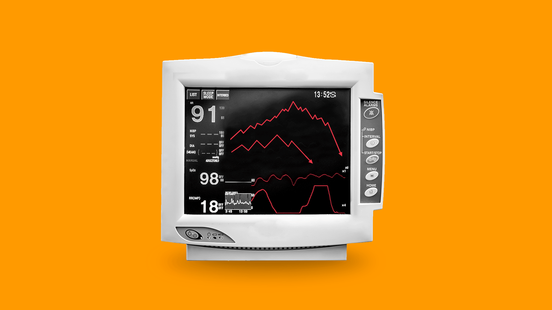 Illustration of an EKG machine with downward pointing market trend lines in place of heartbeat information.