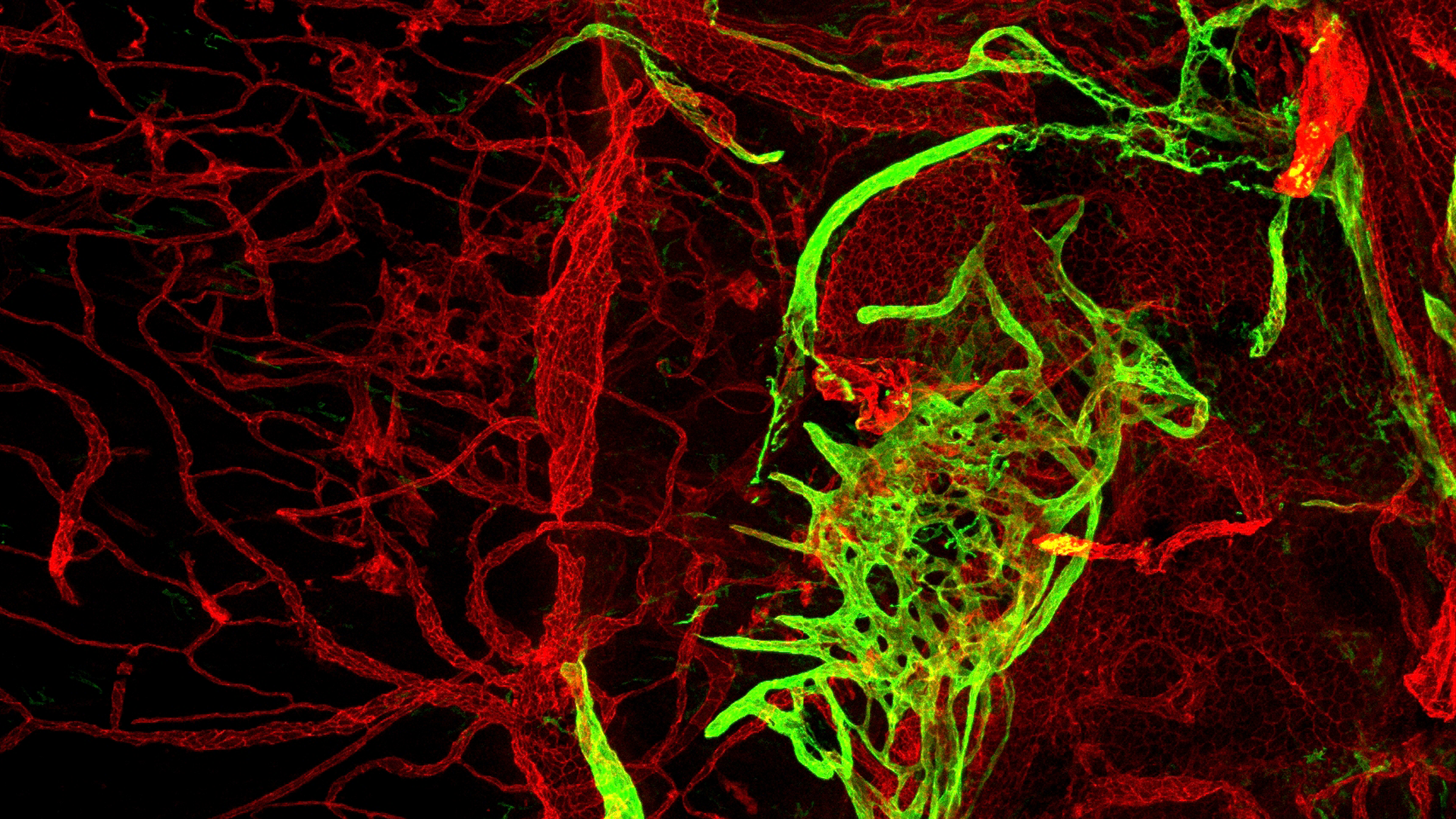 Aging vessels that drain waste from the brain could be associated with neurological issues