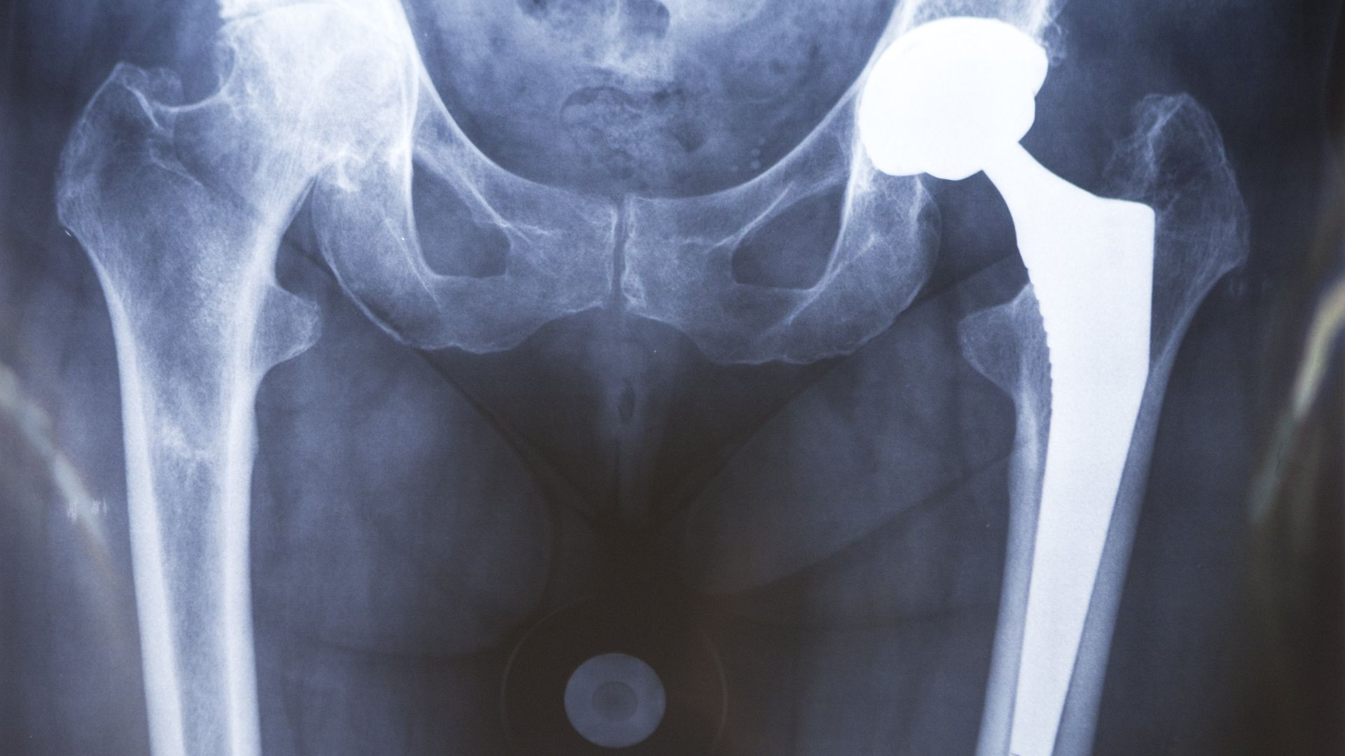 Hip Prosthesis, Surgery X-rays (Photo by: BSIP/Universal Images Group via Getty Images)