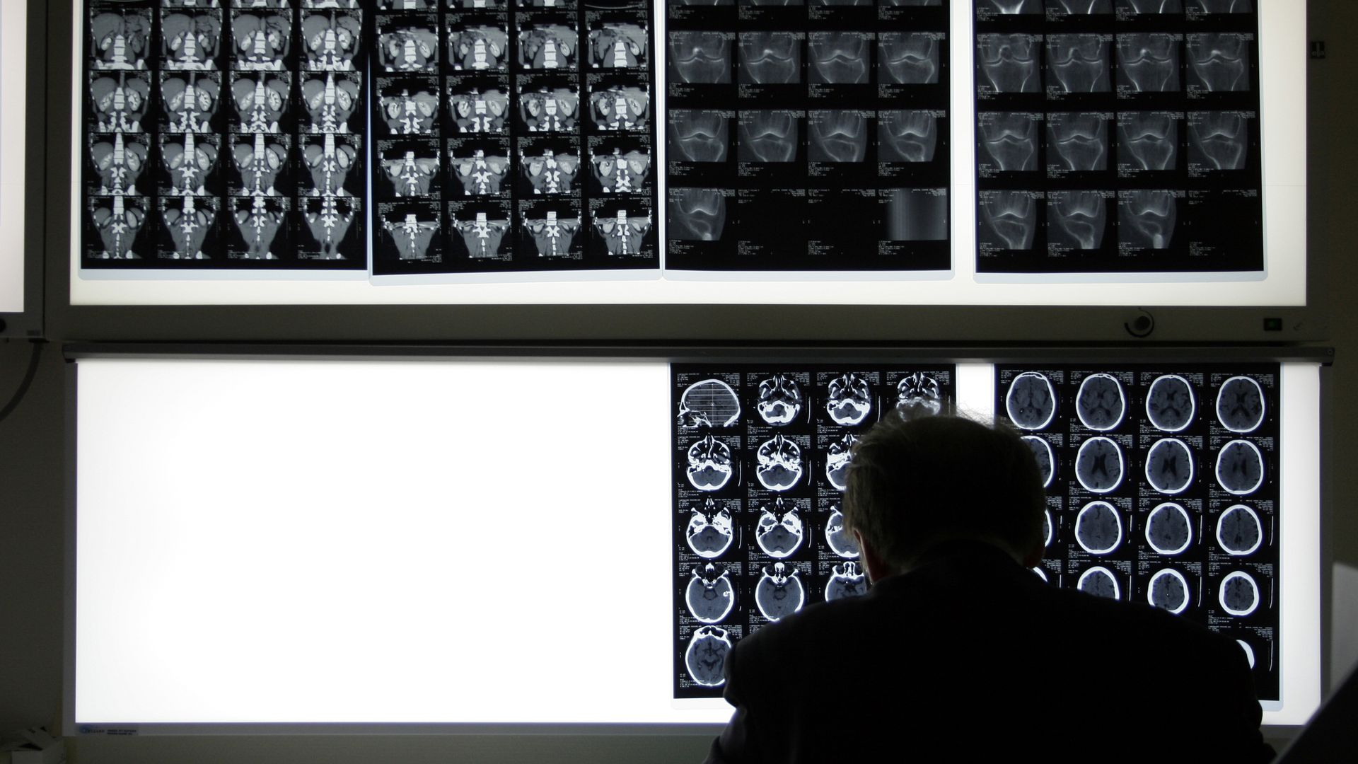 A radiologist looking at scans