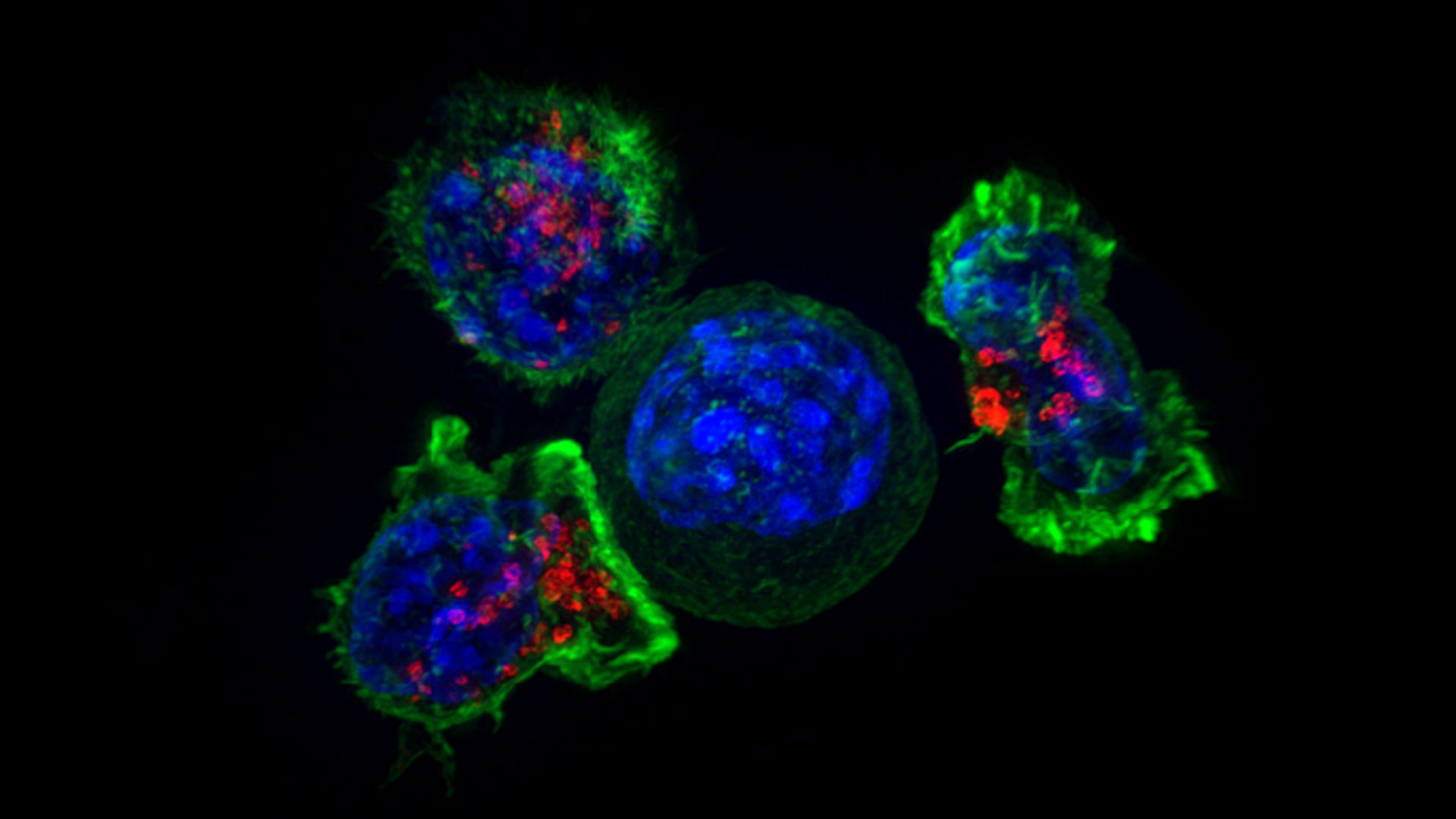 Killer T-cells surround a cancer cell